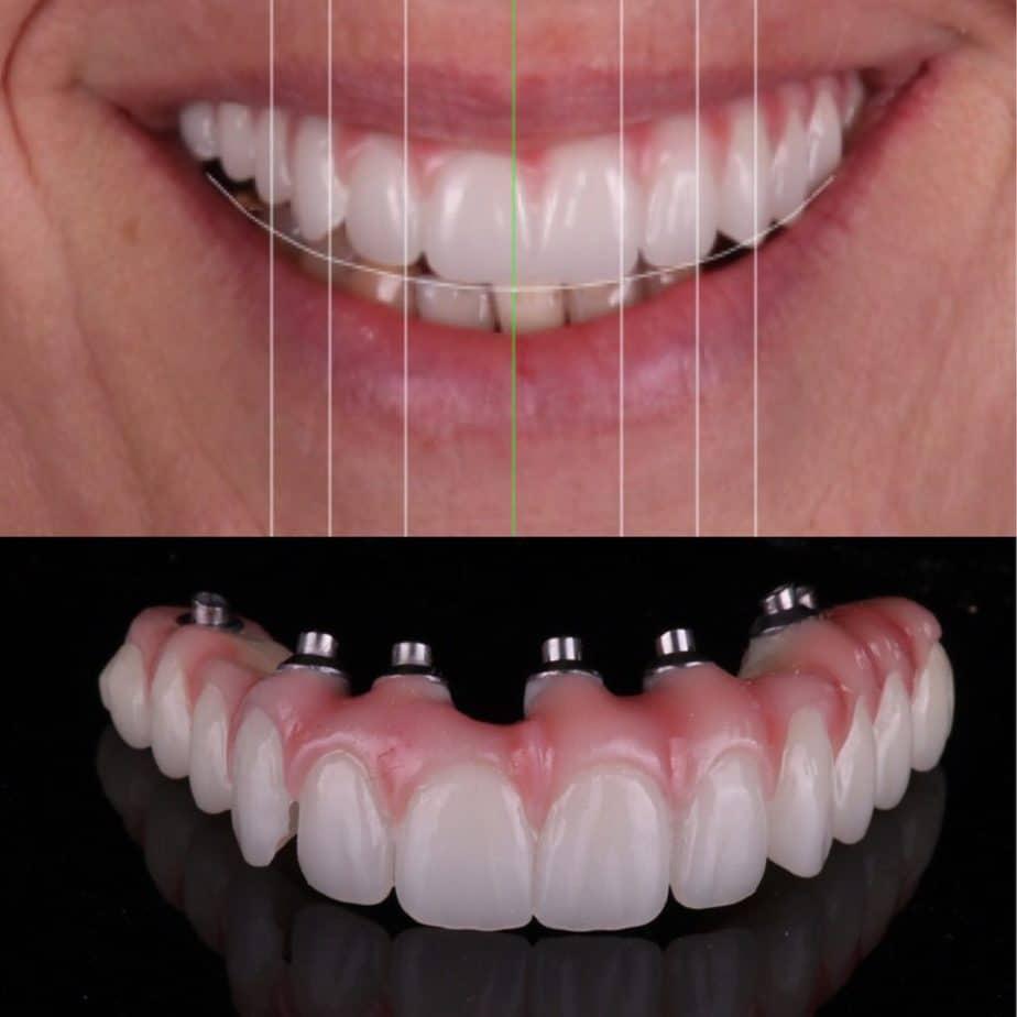 Digital Dentures Alternative To Dental Implant Surgery Alternative